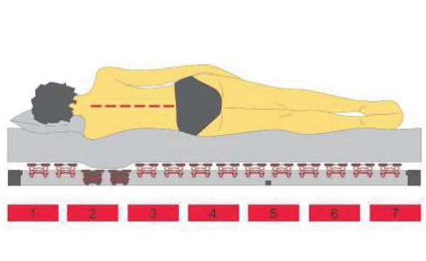 Anatomické zóny roštu